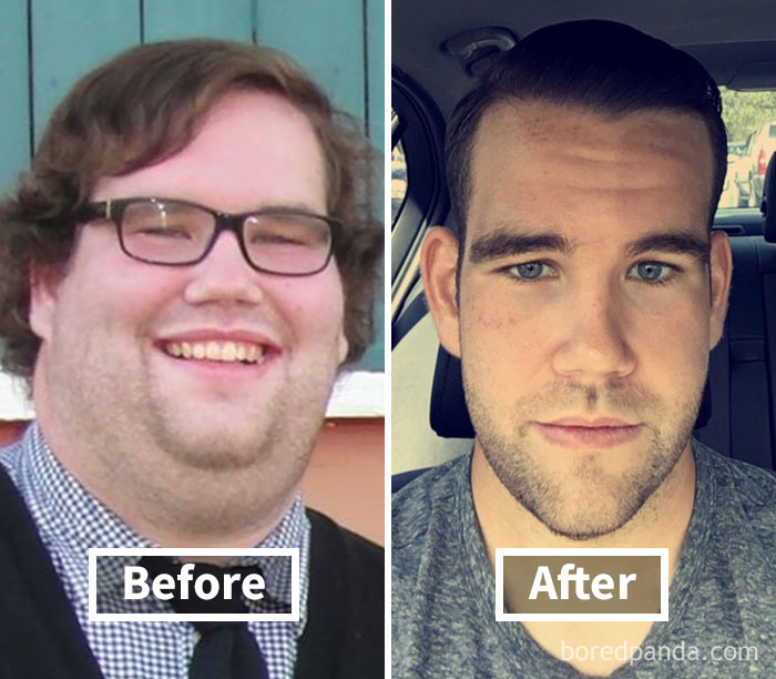 before-after-weight-loss-face-transformation-146-5a2a65d7740af__700