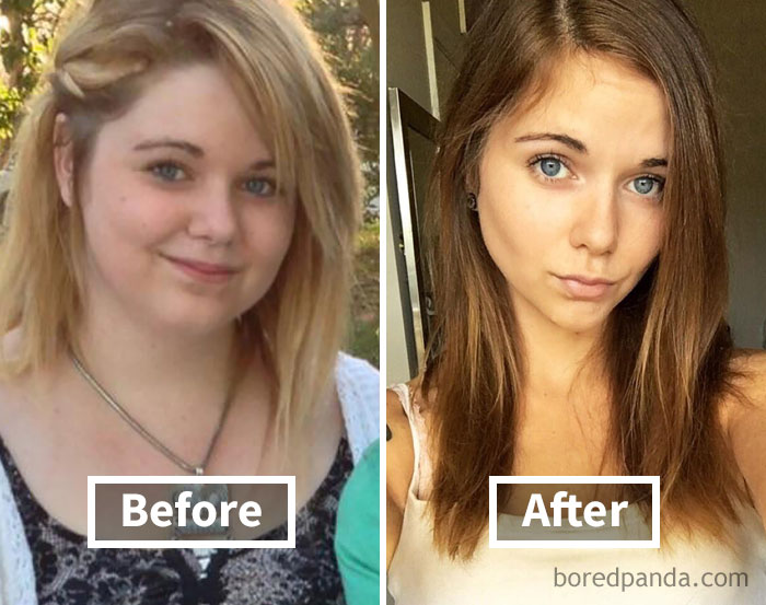 before-after-weight-loss-face-transformation-57-5a1ed678a35ee__700