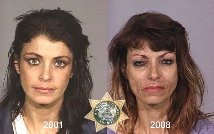 antes y despues drogras2