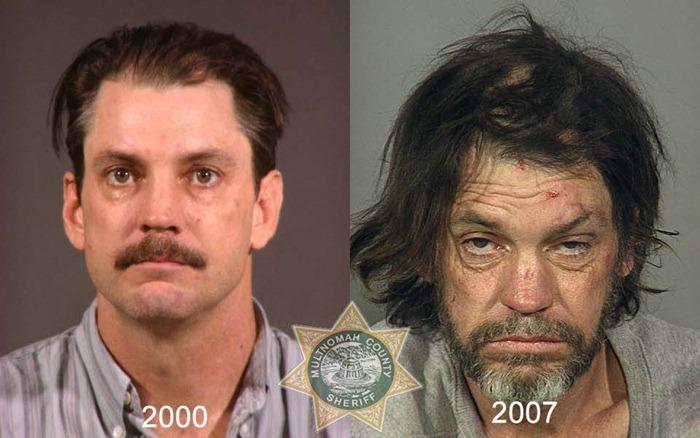 antes y despues drogras3