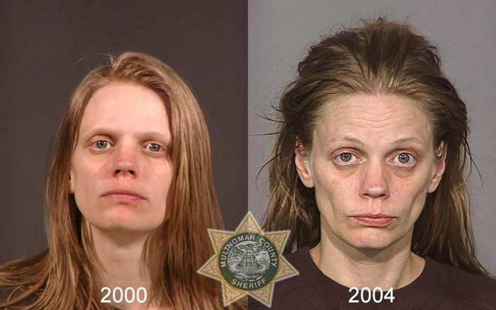 antes y despues drogras6