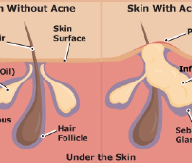 How Acne Is Formed