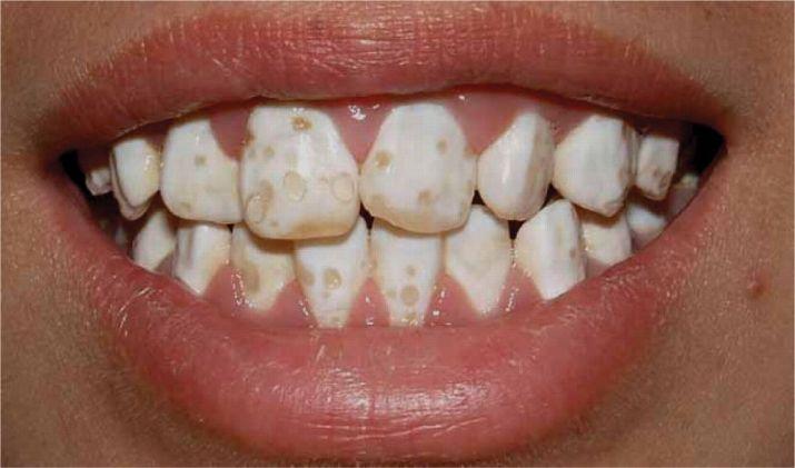 Amelogénesis. Foto de dentodontic.