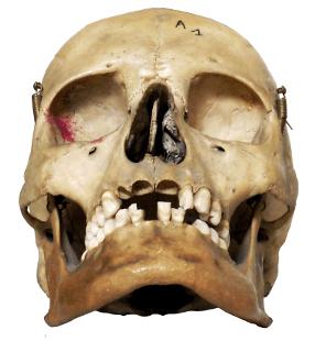 Skullfront.png