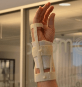 Finished Wrist Cast