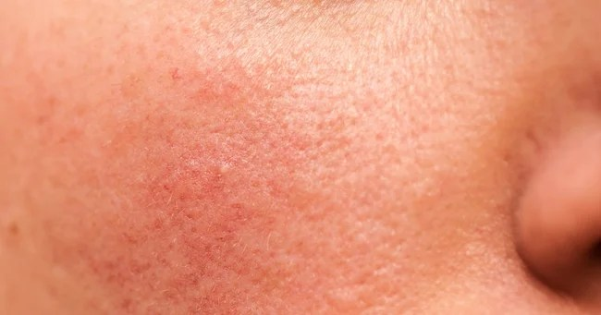 Vitamin B12 Deficiency Skin Rash B12 Deficiency Skin