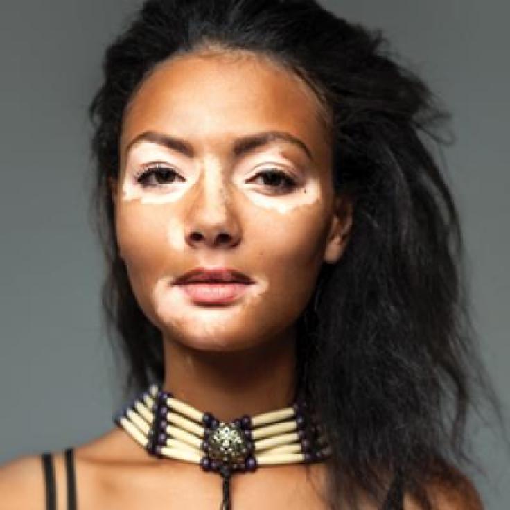 Is Vitiligo in Vogue? The Changing Face of Vitiligo | MDedge Dermatology