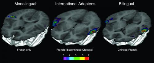 Finding 'lost' languages in the brain
