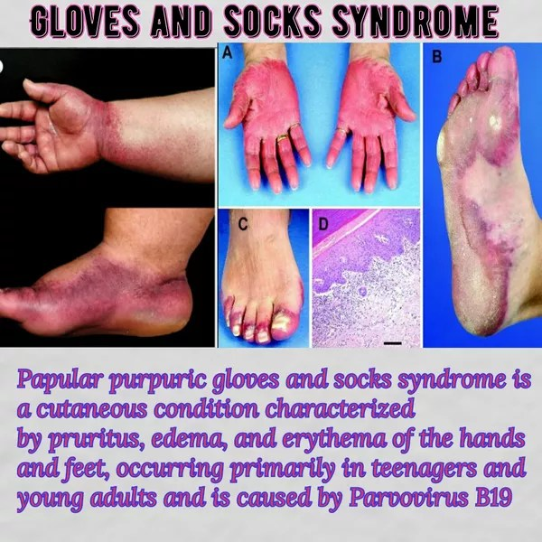 Gloves And Socks Syndrome