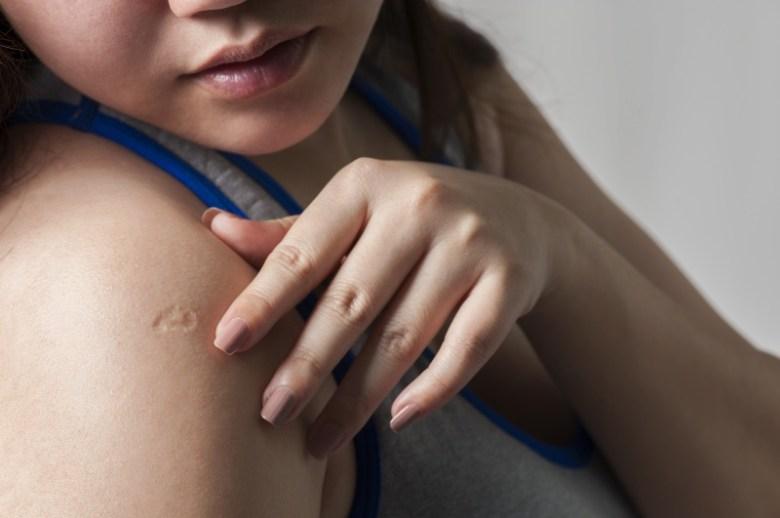 Qué significa la cicatriz en tu brazo derecho y por qué todos la ...