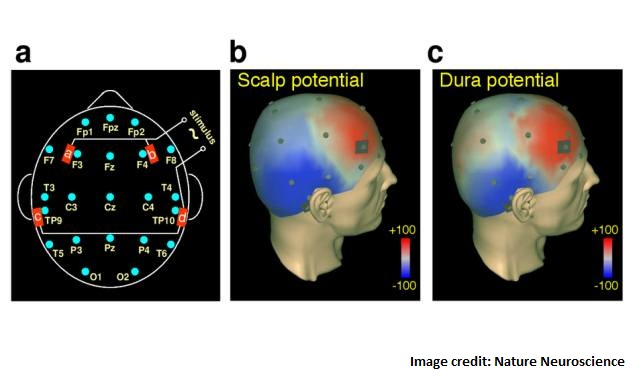 tacs_electrodes_nature_neuroscience.jpg