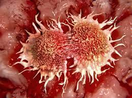 foto bij artikel Is kanker nu definitief verslagen?