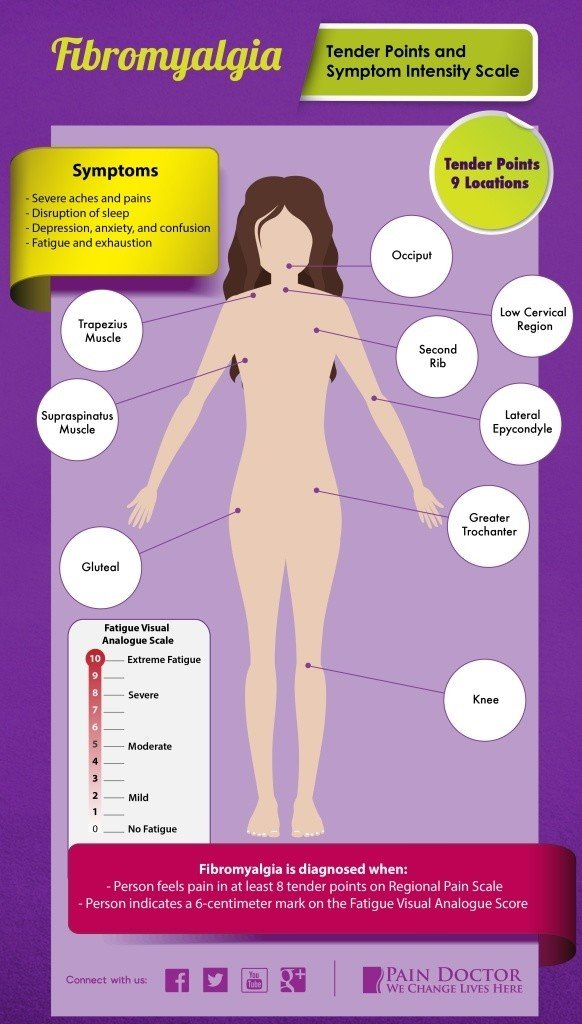 Fibromyalgia Symptoms -- 27 Of The Most Common Signs
