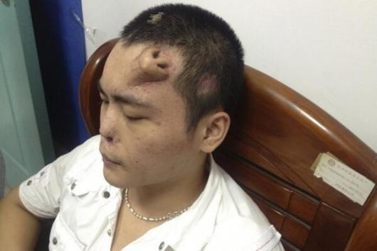 Surgeons in China have begun to reconstruct a new nose for a man on his forehead. / Twitter