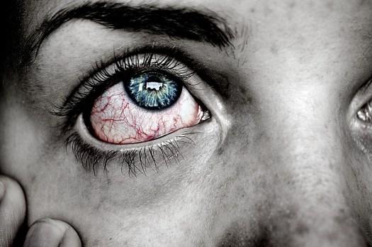 Occhio, Malato, Blu, Red, Dolore