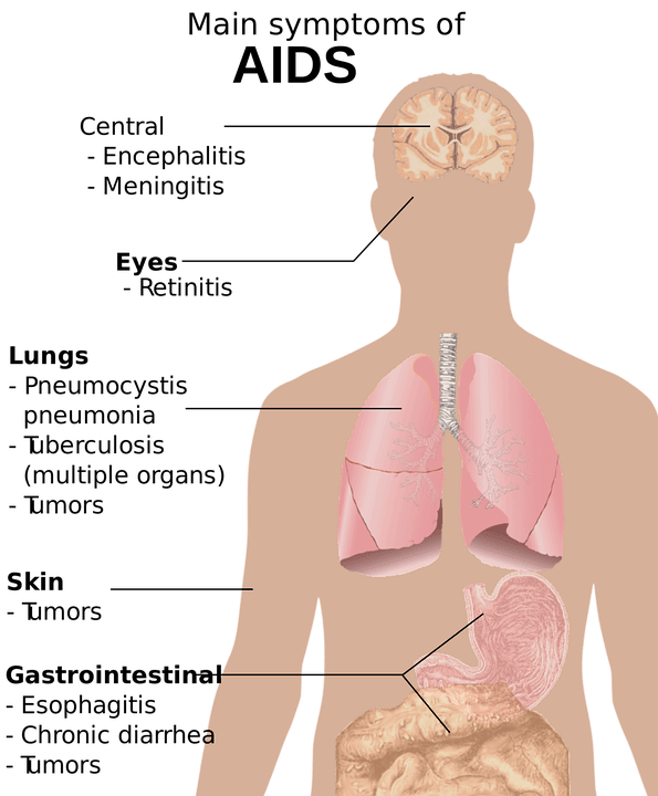 Hiv, Aids, Png 2-2, Studi Tentang Tubuh Manusia