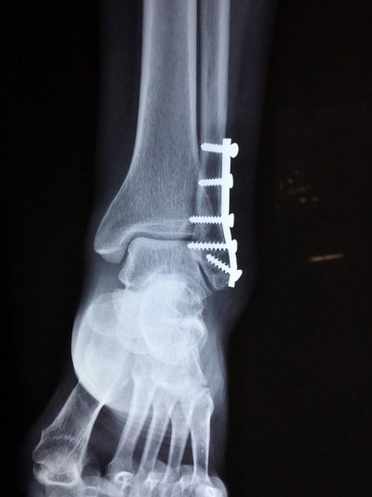 Caviglia, Frattura, Piede, Medico, Incidente, Trauma