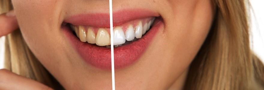 Arcada dentária fica mais branca com o uso de produtos com carvão