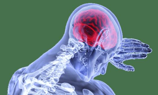 Cervello, Infiammazione, Corsa, Medico