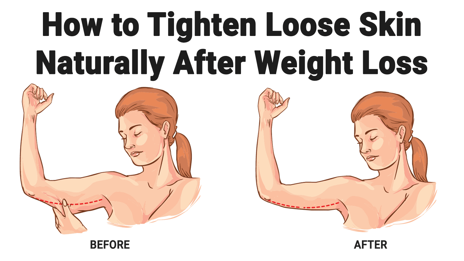 How To Tighten Loose Skin Naturally After Weight Loss Loose Skin