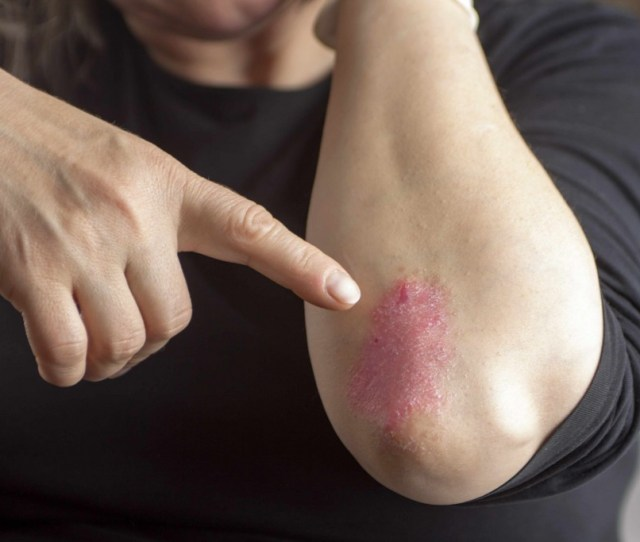 Mayo Clinic Q And A With Psoriatic Arthritis The Sooner Therapy Is Started The Better
