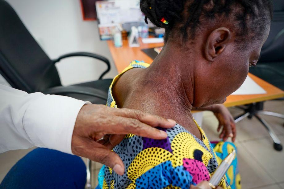 """تُظهر شركة Delle جلد مريضه المكسور.  أرادت البالغة من العمر 55 عامًا أن تبدو """"أفضل وأكثر نضارة"""" ، لذلك قامت بتطبيق كريم التبييض على جسدها بالكامل.  لم تكن تعرف مدى ضررها على بشرتها"""