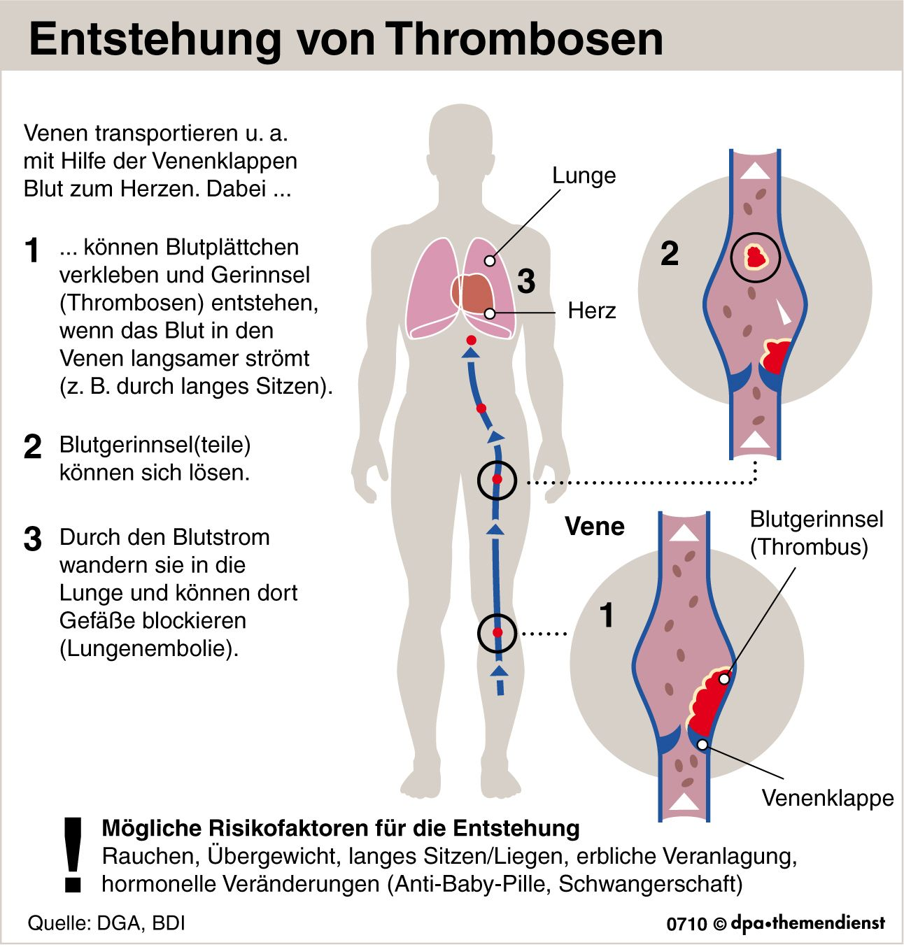 https www spiegel de gesundheit diagnose gefaehrlicher pfropf auf risiko einer thrombose achten a 1033696 html