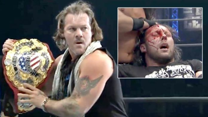 Image result for Chris Jericho Attacks Kenny Omega