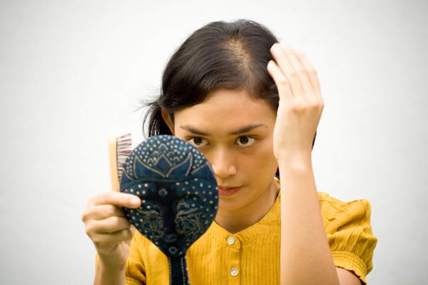 Woman with Trichotillomania