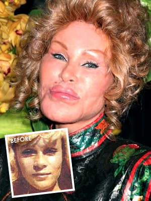 Jocelyn Wildenstein had bad plastic surgery