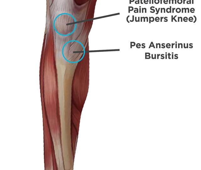 Types Of Pain You Feel In The Front Of Your Knee Patellofemoral Pain Syndrome