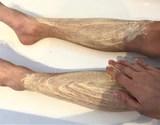 how to treat eczema naturally australia