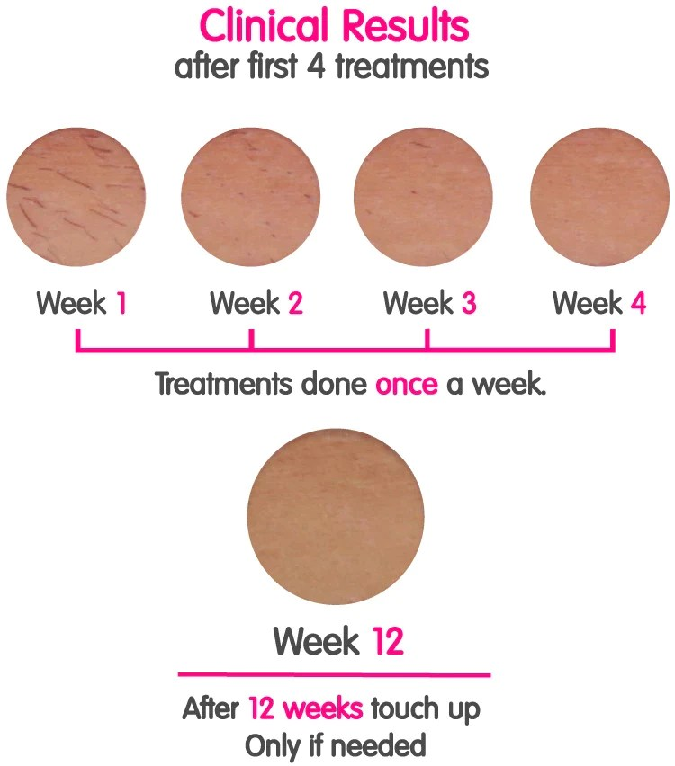 Clinical Results RoseSkinCo IPL Laser