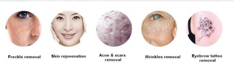 Exogenous Pigment Removal:Eye line,Lip line,Tattoo removal;  Endogenous Pigment Removal:Birthmark, Age spot,Sun spot,Freckle,Naevus of Ota and Ito;  Skin Care :Skin tightening ,Fine lines removal,Anti- wrinkle,Stretch marks removal.