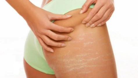 showing stretch marks on the right thigh