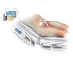 female external catheter