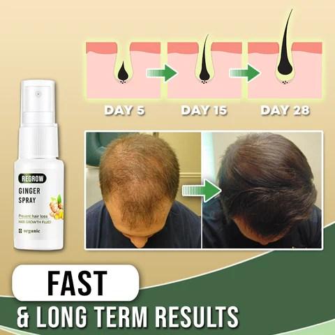 Regrowth Ginger Hair Spray