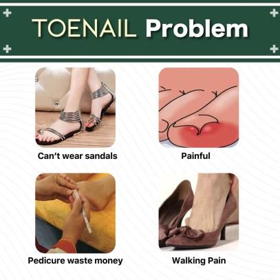 Nail Treatment Repair Gel