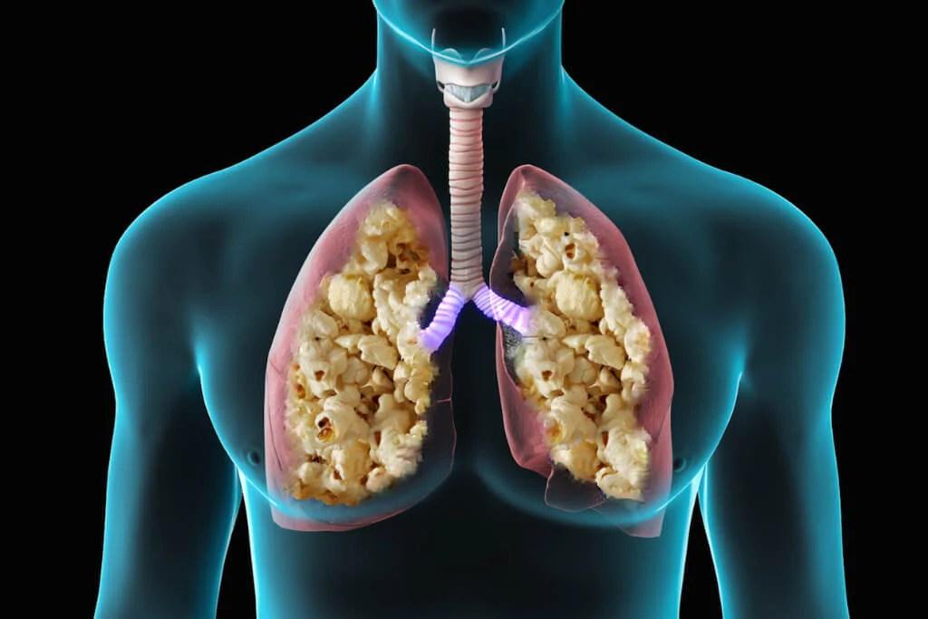 Image result for popcorn lung