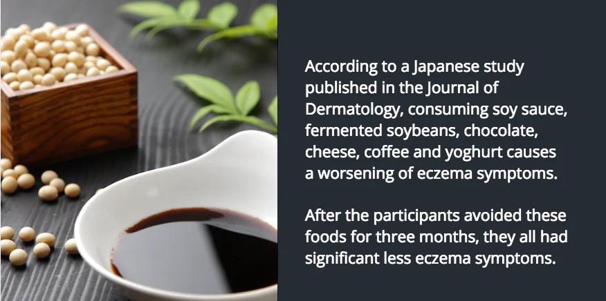 Soy sauce yoghurt coffee chocolate and eczema