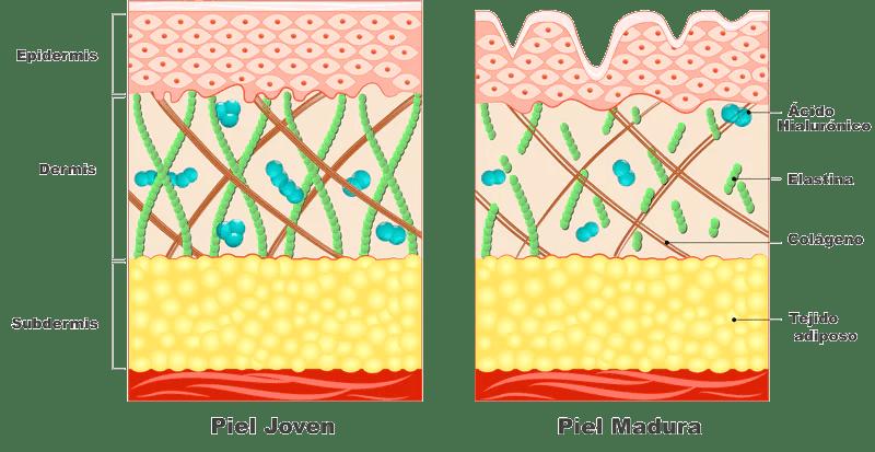 Resultado de imagen de foto de piel envejecida