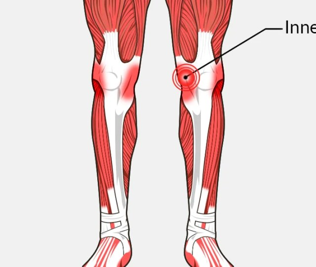 Inner Knee Pain The Complete Injury Guide