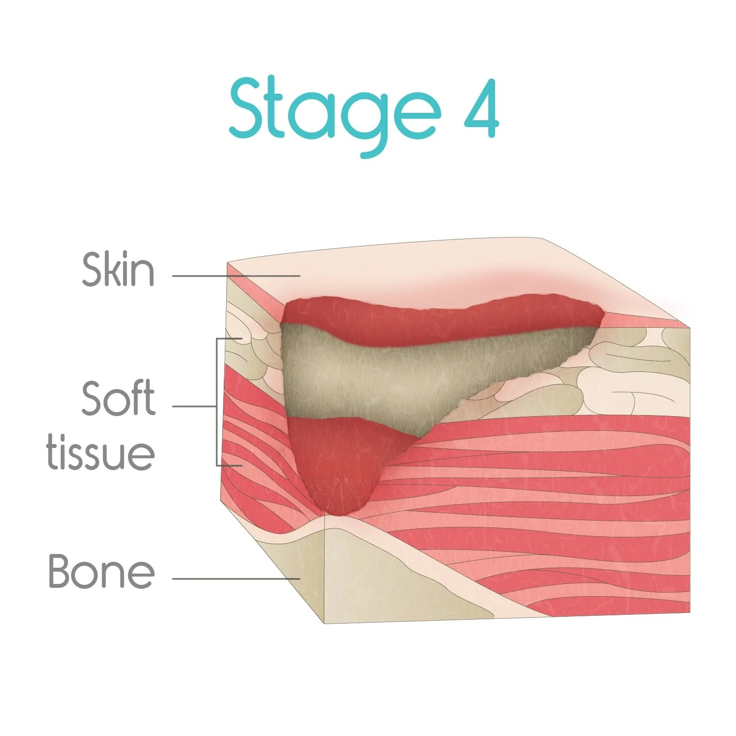 stage four bed sores