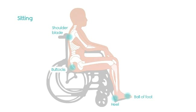 vulnerable pressure points in wheelchair