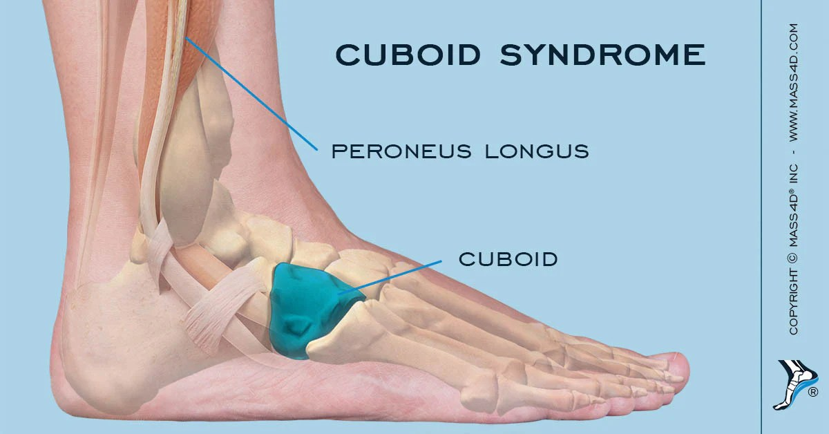 What is Cuboid Syndrome?