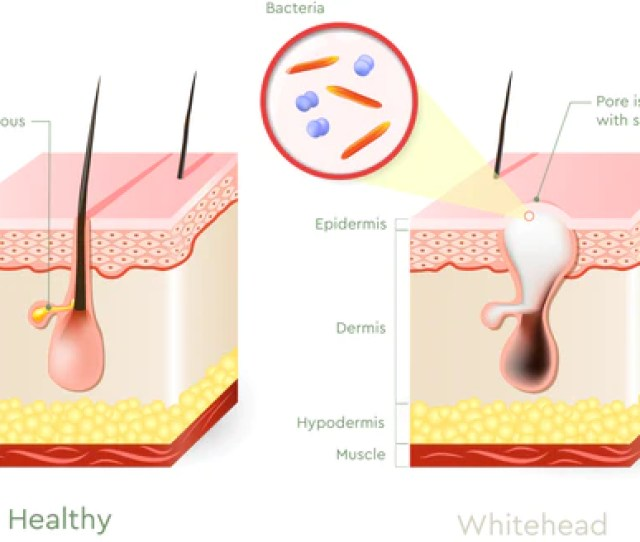 While Acne Vulgaris Isnt Exclusive To Any Particular Age In Life There Are Ages And Situations In Which Whiteheads And Other Acne Lesions Become More