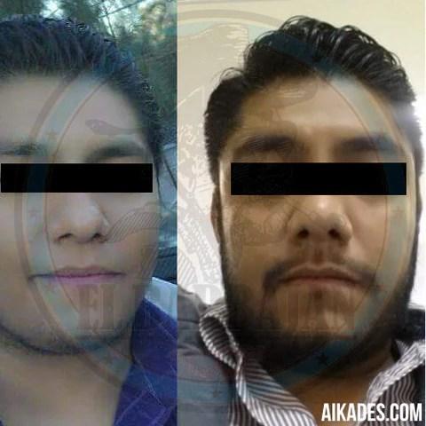 resultados-minoxidil-barba-2-aikades