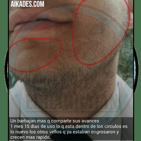 resultados-minoxidil-barba-aikades-4