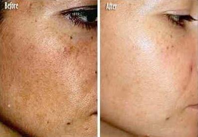 Best-anti-pigmentation-cream