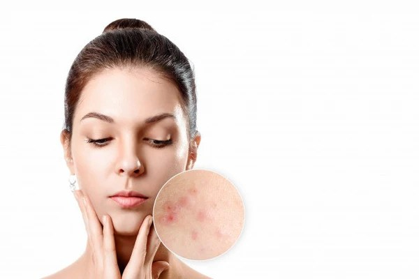 acne treatment with microdermabrasion
